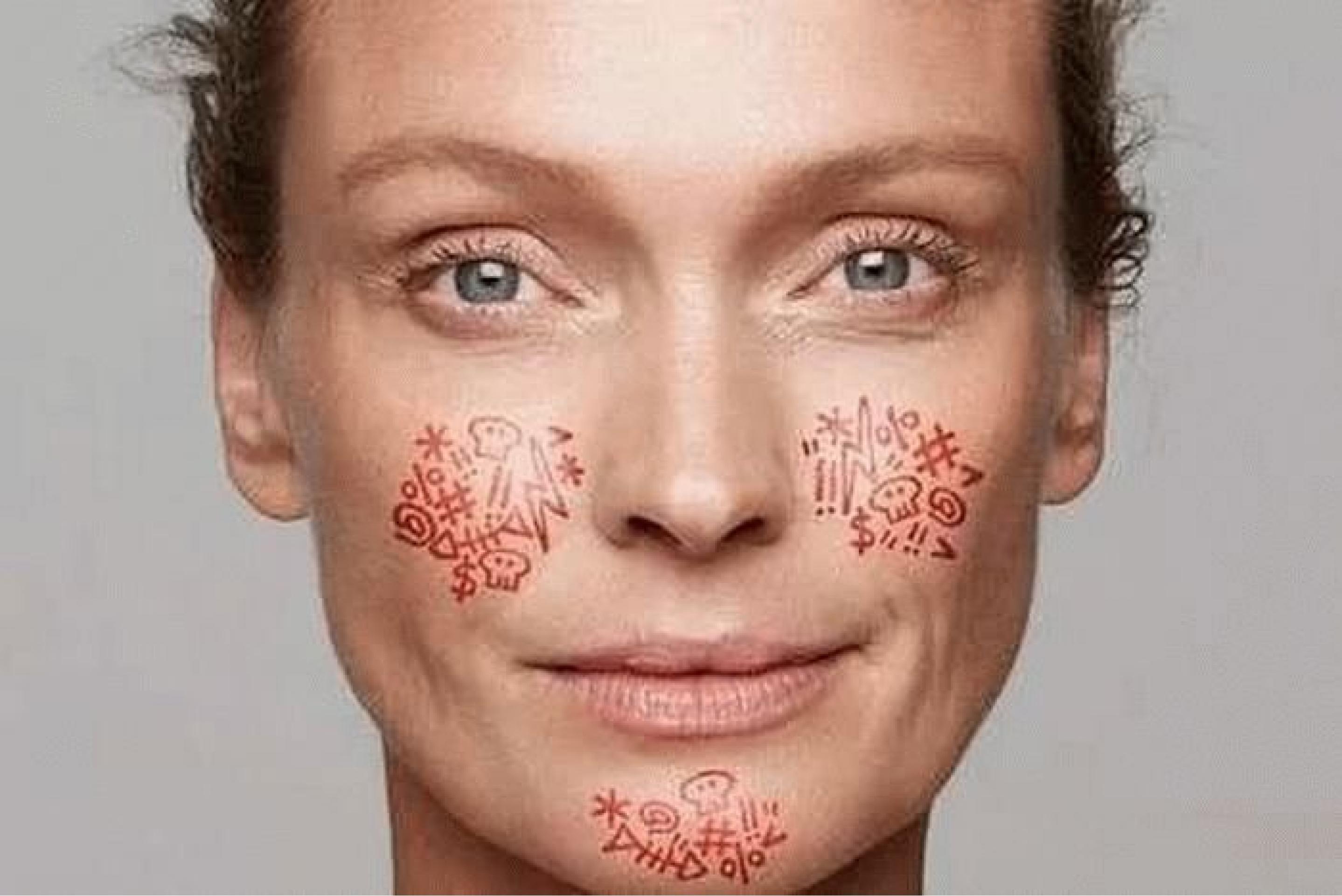 Натуральная косметика для кожи с куперозом: как выбрать и использовать?